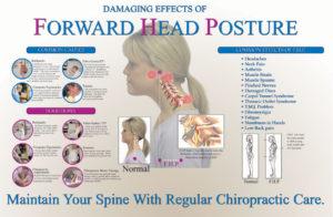 1-forward-head-posture